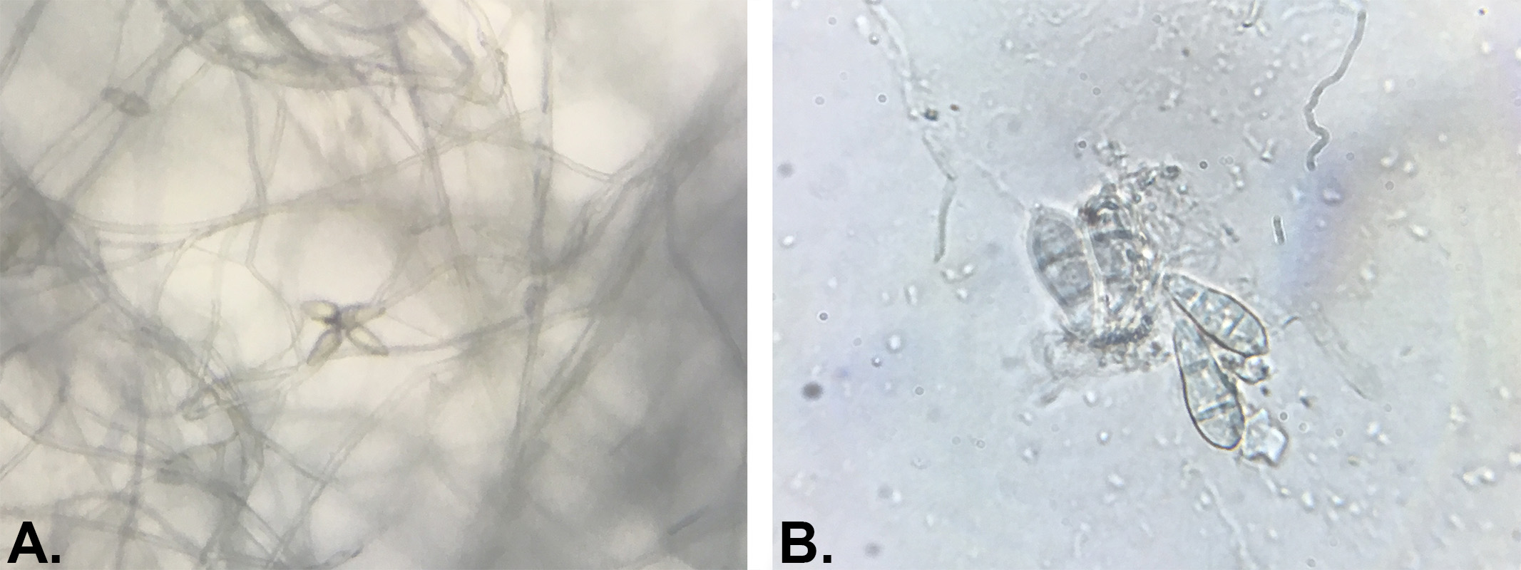 Culture de Magnaporthe Grisea isolée sur milieu gélosé PDA au microscope